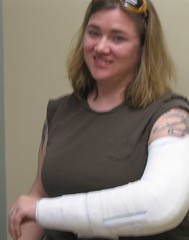 The splint, and a brave face for the nurses