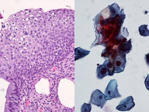 papsmear · cytology 2011