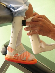Tiny Ankle Braces (valockett) Tags: child legs brace rehabilitation paralysis littlestories orthotics orthosis picswithsoul mastersoflifegallery