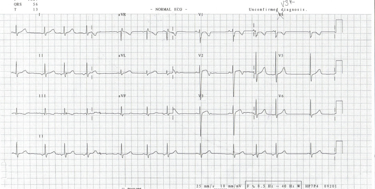 E) Second Degree Heart Block