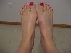 Bruised tootsie