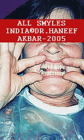 aesthetic dentist india