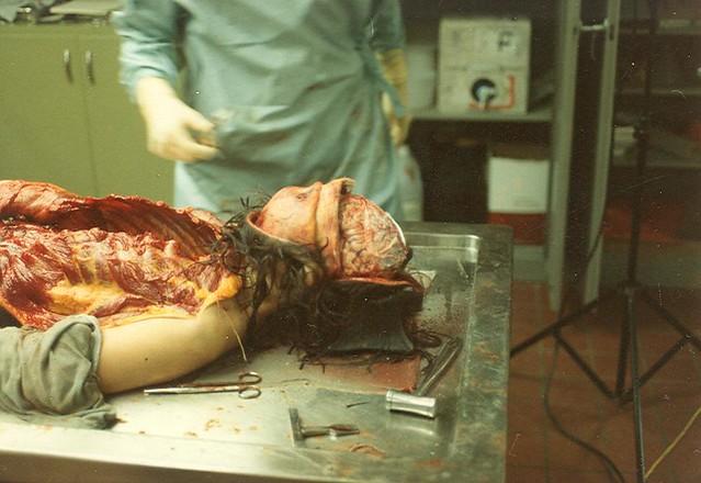 Nixon Autopsy