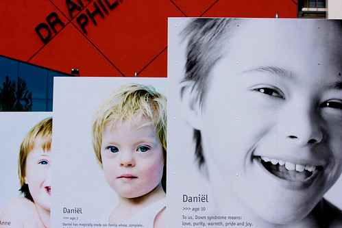Pictures of Down Syndrome. by zilverbat., on Flickr