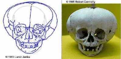 skull_p