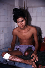 Cambodian Blind Amputee Landmine Victim (pictim) Tags: thailand war mine cambodian refugee disabled landmine landminevictim handicapped transitcamp prachinburi khoaidang