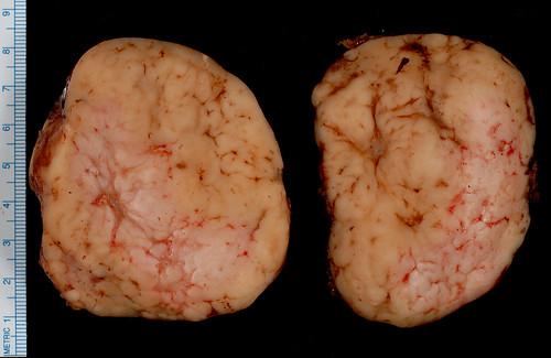 Superficial Inguinal Lymphadenopathy Retroperitoneal