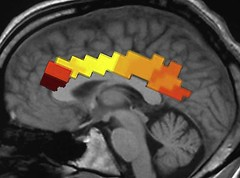 Figure 2. Cingulate cortex response following ...
