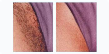 bikini-wax-before-and-after-pics