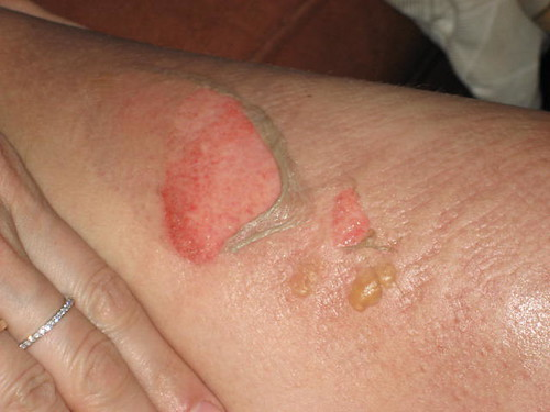 My burned thigh