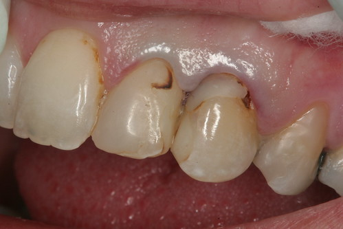 Front teeth cavities