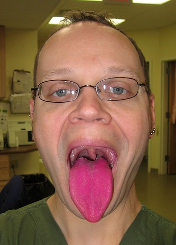 030408Tongue_dyed