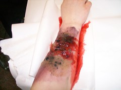 Burn (allianceforempowerment) Tags: fake burn homemade injuries moulage