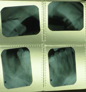 X-ray of Lefebure's teeth. The lower left shows only the root remaining for one tooth.