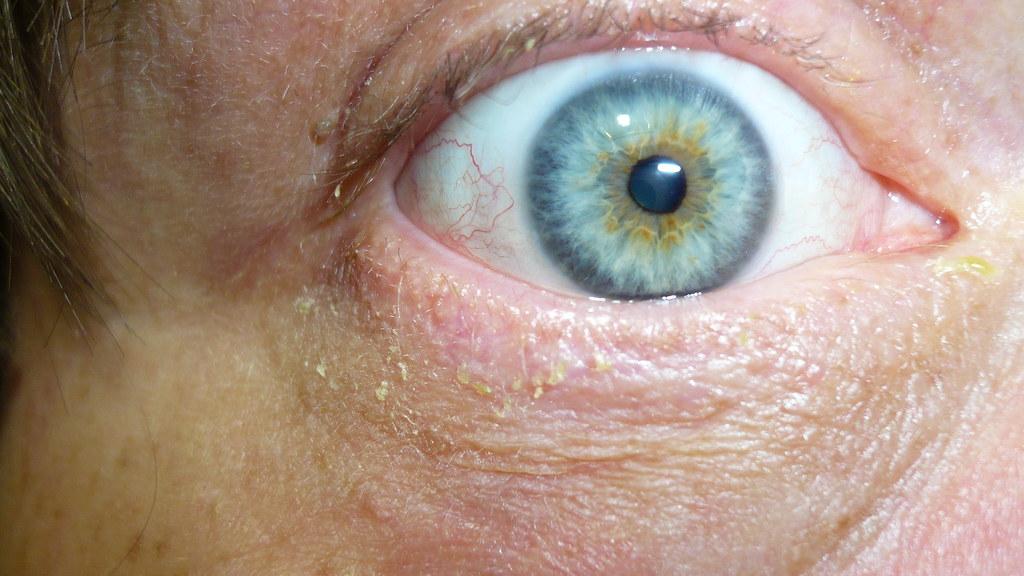 P1030841 1-05-07 RT eye