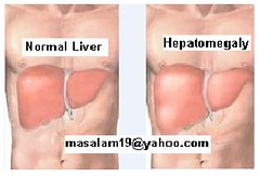 hepatomegaly - definition and meaning, Skeleton