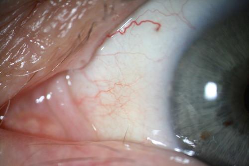 Ingrown Eyelash