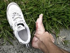 No pain (-Passenger-) Tags: ouch foot shoes colombia injury running blister passenger medellín reebok nopainnogain universidaddeantioquia