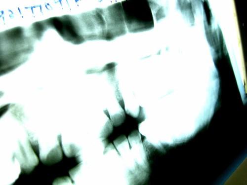 wisdom tooth 003