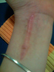 6 months post-op (ejahnle) Tags: pink formation ugly wrist worm scar keloid