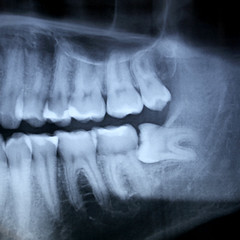 My Crazy Teeth (Stracubo) Tags: wild strange hospital mouth rebel grey crazy funny teeth vanity medical odd xray anatomy jaws bite dentist radiography my stracubo