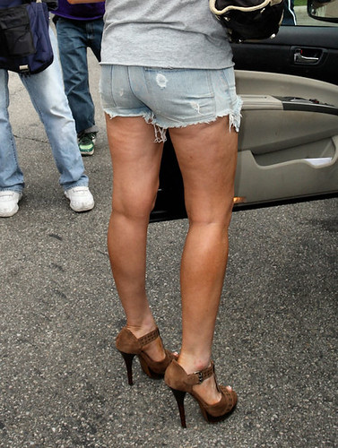 cottage cheese legs