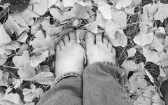 No Toes (TheHeatherShow) Tags: feet foot toes amputee