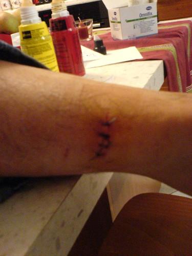 Papa Stitches