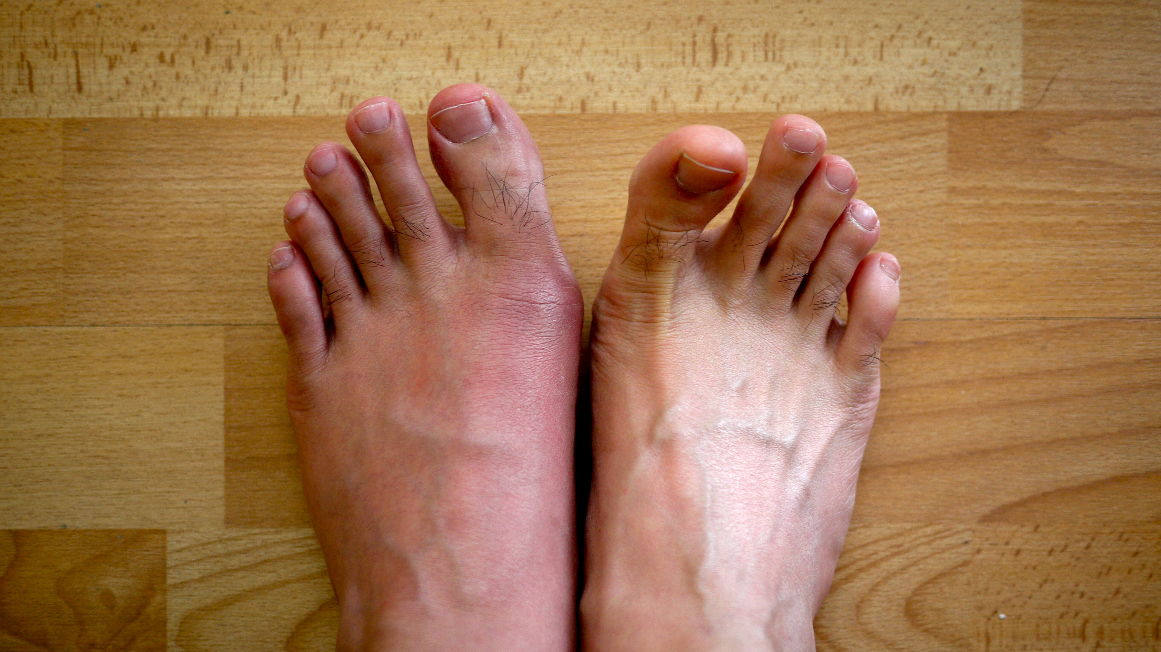 gout causes and treatment gout ankle swelling pictures foods to avoid when you have gouty arthritis