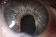 Damaged Iris (alconway) Tags: iris eye injury damage trauma ocular optic optometry ophthalmology alconway forumsalconwaycom thebigforumalconwaycom thebigforum httpforumsalconwaycom httpthebigforumalconwaycom