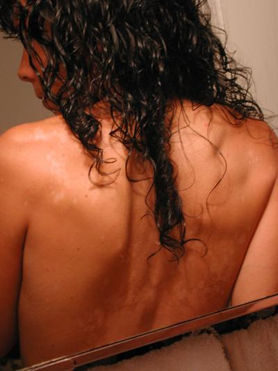 my back thing.
