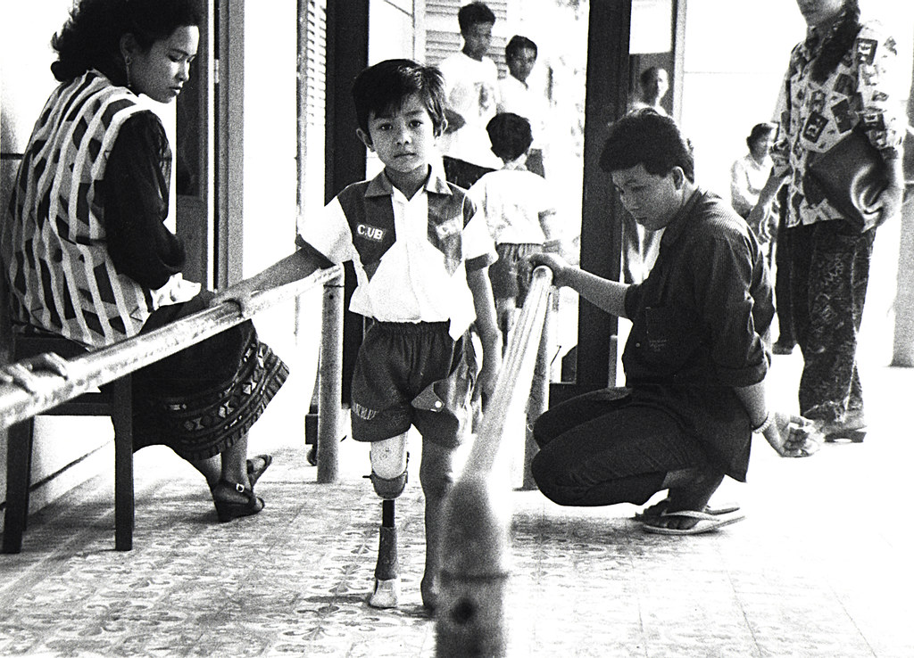 Cambodian Boy Landmine Victim Learning to Walk