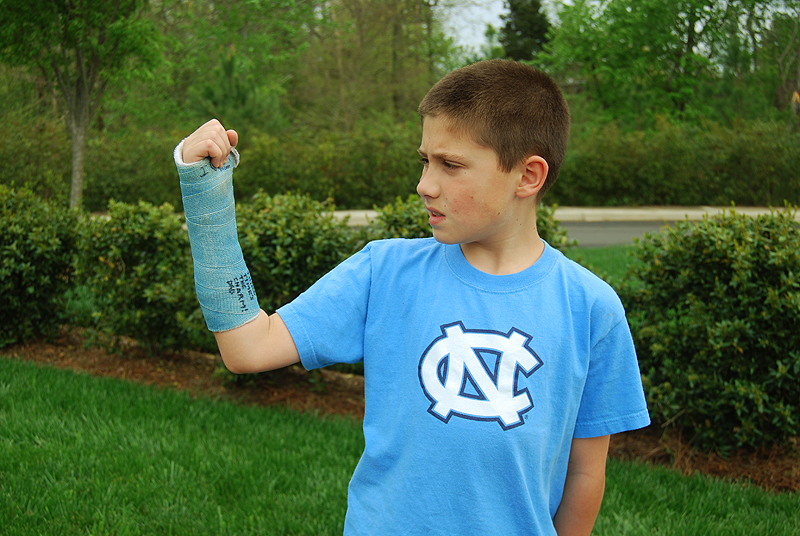Right Arm Cast
