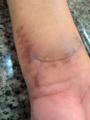 SAM_5224 (thwl) Tags: hand injury wrist scar