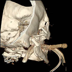 Motorcycle Accident 2 (Surfactant) Tags: crash accident motorcycle frontal fracture orbit facial nasal ett mandible maxillofacial endotracheal maxilla lefort orogastric
