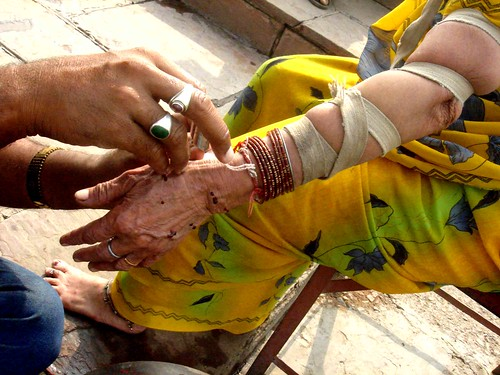 Blood Letting in Old Delhi