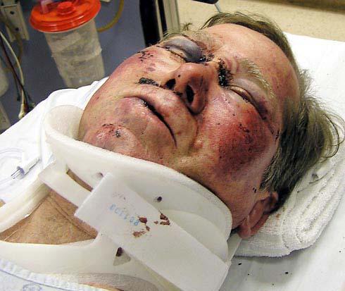 Injured man.jpg