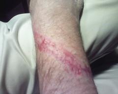 super emo! (btmspox) Tags: arm accident stitches wrist scar laceration degloving