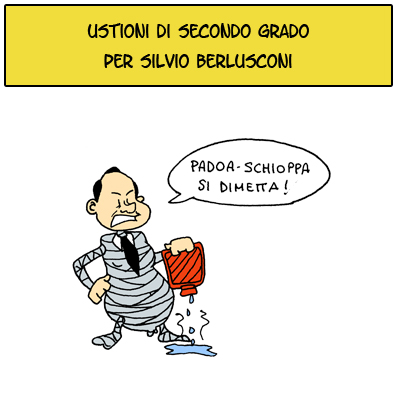 Berlusconi ustionato