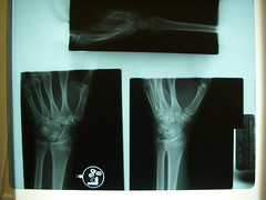 X-ray of my wrist ((ariel)) Tags: broken xray bones wrist healed