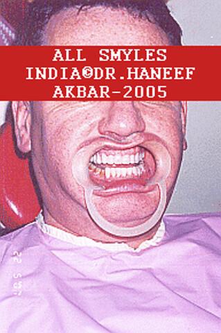 best aesthetic dentist india