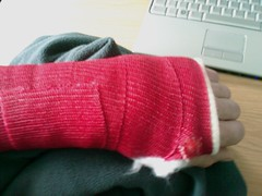 broken left wrist (Simeon Pashley) Tags: oww