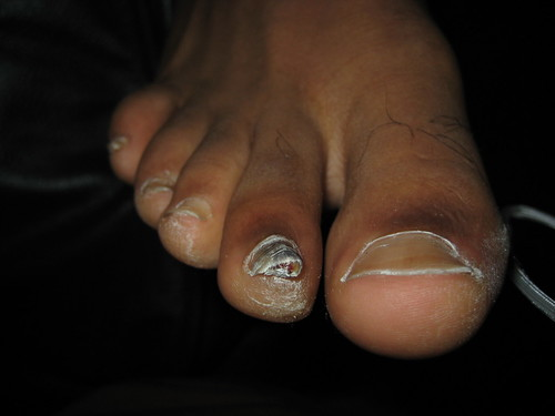 Vicks+vapor+rub+on+toenails