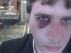 My Blackeye