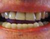 Detail sur dents pour web et blog