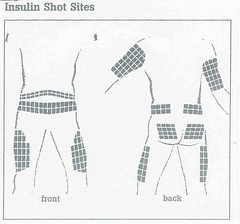 FAQ:  Where to give insulin shots?