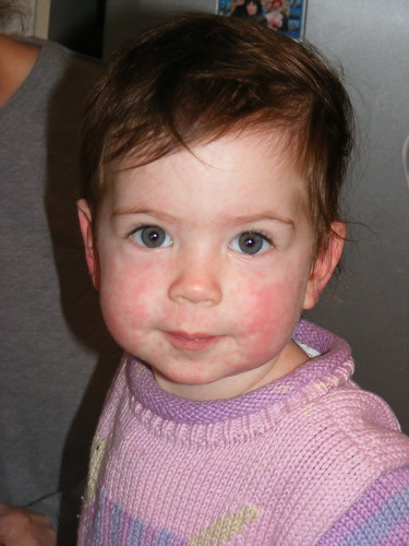 infant heat rash pictures. heat rashes in infants. infant