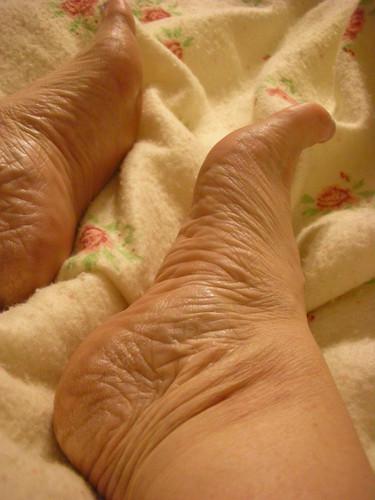 symptomsheadachesconstipationnauseaweakness when not eatingitchy footpain in handsarms