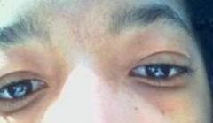 my eyes 10-15-07