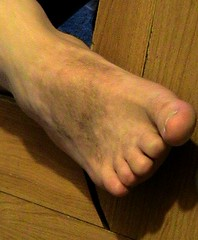 foot (weaponeer) Tags: toes amputee foot amp stump amputation cutofftoes stumpy missingtoes cooltoes scar scars finger fingerstump stumps cutofffingers choppedofffingers amputations messedup nub nubs